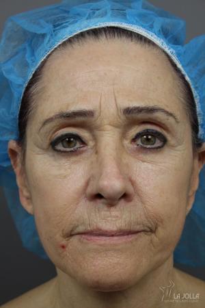 Sculptra®: Patient 6 - Before