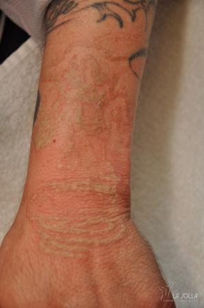 Tattoo Removal: Patient 1 - After