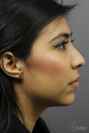 Non-Surgical Nose Job: Patient 3 - After