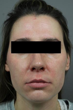 Chemical Peel: Patient 7 - After