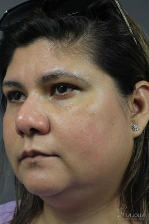 Chemical Peel: Patient 5 - Before