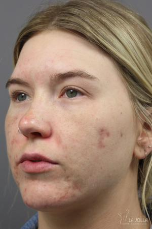 StarWalker® Laser: Patient 8 - Before