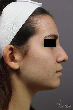 Non-Surgical Nose Job: Patient 2 - After