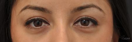 Under Eye Filler: Patient 4 - After