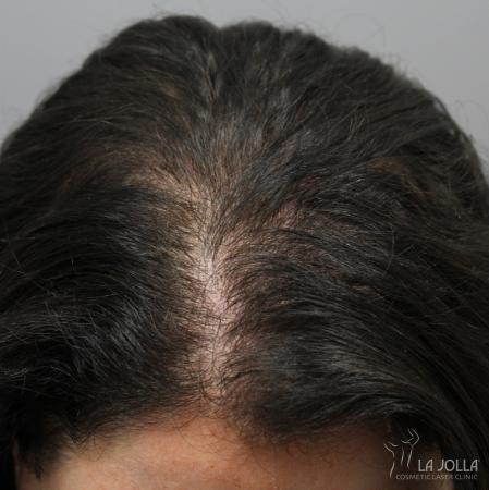 Hair Restoration: Patient 4 - After