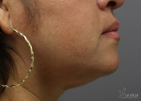 Kybella: Patient 6 - After