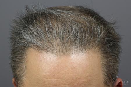 Hair Restoration: Patient 2 - After