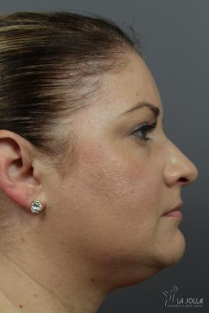 Kybella: Patient 1 - Before