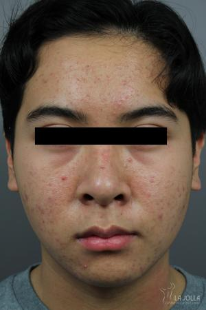Chemical Peel: Patient 1 - Before