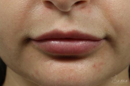 Lip Filler: Patient 1 - After