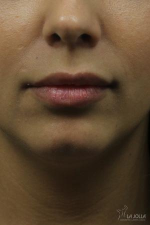 Restylane® Kysse: Patient 2 - After