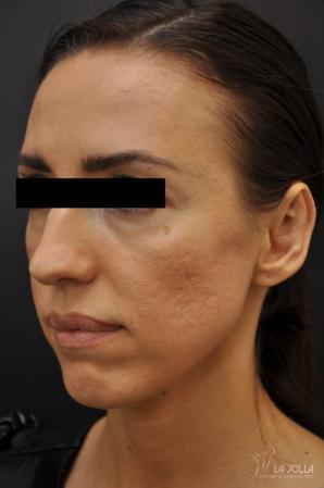 Under Eye Filler: Patient 1 - Before
