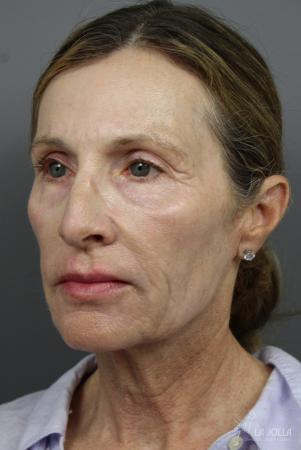 6D Platinum Laser Lift: Patient 2 - After