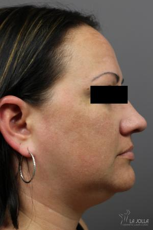 Kybella: Patient 2 - Before