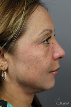 Skin Care Products: Patient 1 - After