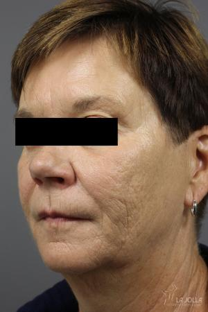 Restylane®: Patient 2 - After