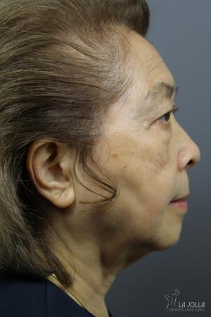Ultherapy®: Patient 1 - After