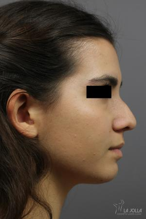 Non-Surgical Nose Job: Patient 2 - Before