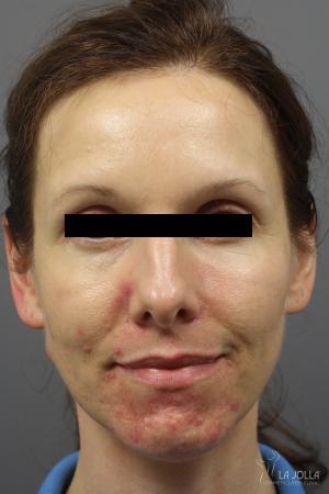 Acne Rejuvenation: Patient 4 - Before