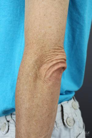 StarWalker® Laser: Patient 7 - Before