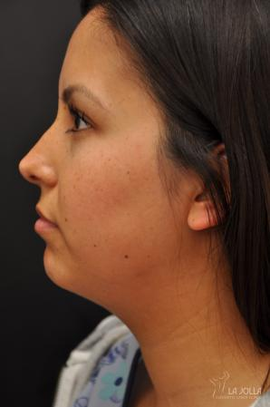 Kybella: Patient 5 - Before