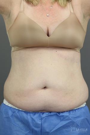 CoolSculpting®: Patient 4 - Before