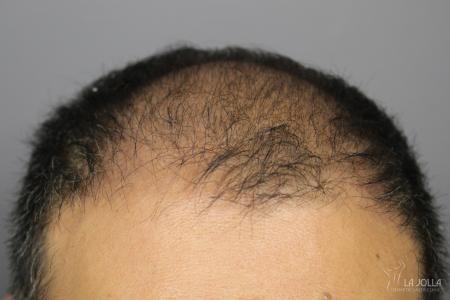 Hair Restoration: Patient 3 - Before
