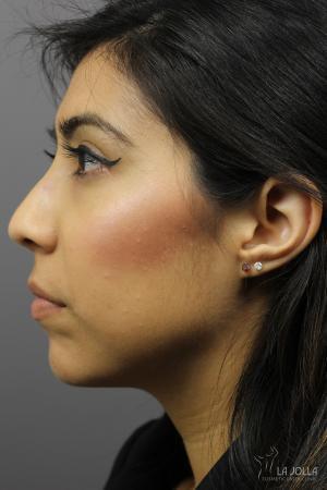 Non-Surgical Nose Job: Patient 4 - After
