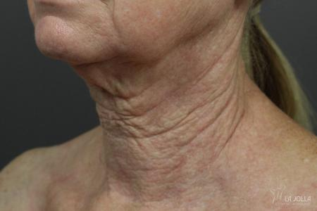 Non-Surgical Necklift: Patient 2 - After