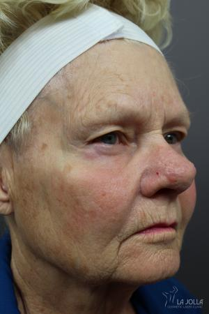 Lasers For Rhinophyma: Patient 2 - Before