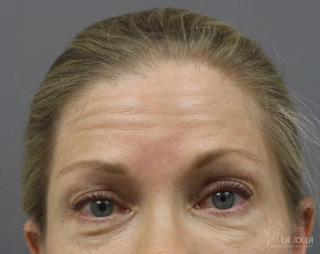BOTOX® Cosmetic: Patient 4 - Before
