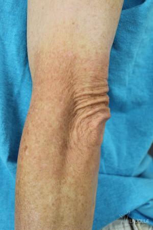 StarWalker® Laser: Patient 7 - After