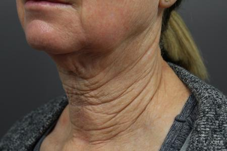 Non-Surgical Necklift: Patient 2 - Before