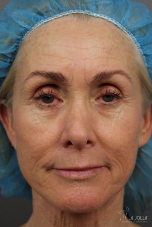 Laser Skin Resurfacing: Patient 1 - Before