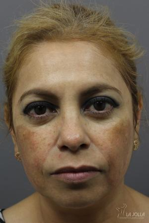 Chemical Peel: Patient 6 - Before