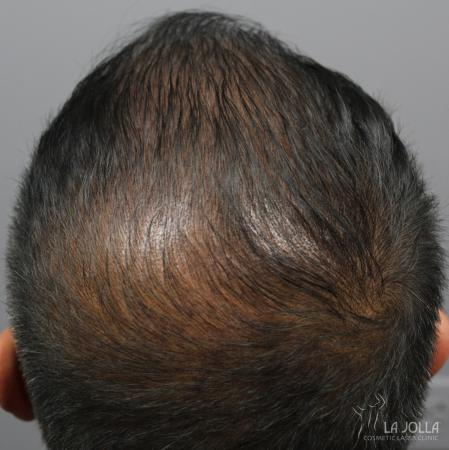 Hair Restoration: Patient 6 - After
