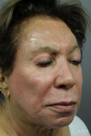 Chemical Peel: Patient 4 - After