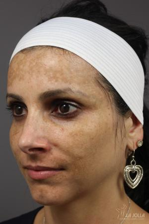 Chemical Peel: Patient 8 - Before