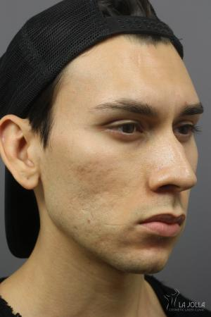 Acne Scars: Patient 6 - Before