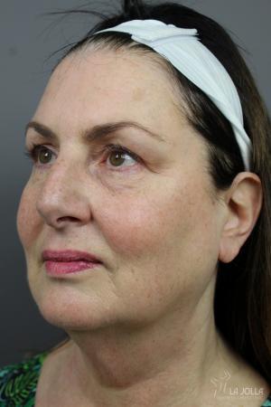 CoolSculpting®: Patient 5 - After