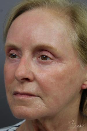 Laser Skin Resurfacing: Patient 2 - After