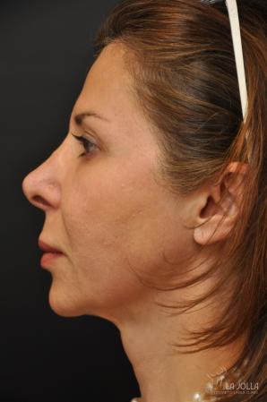 Ultherapy®: Patient 3 - After