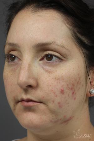 Acne Rejuvenation: Patient 7 - Before
