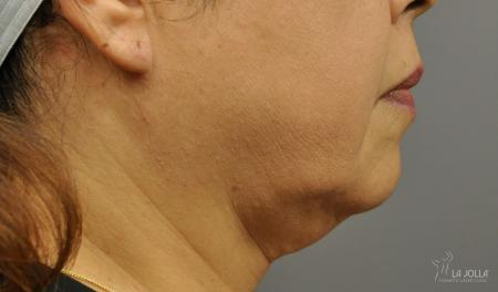 Kybella: Patient 4 - Before