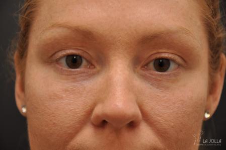 Under Eye Filler: Patient 3 - After