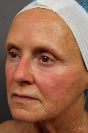 Laser Skin Resurfacing: Patient 2 - Before