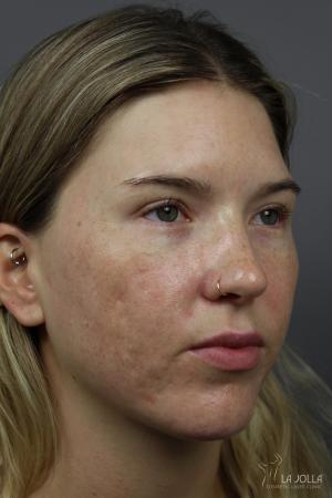 StarWalker® Laser: Patient 9 - After