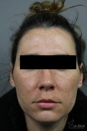 Chemical Peel: Patient 7 - Before