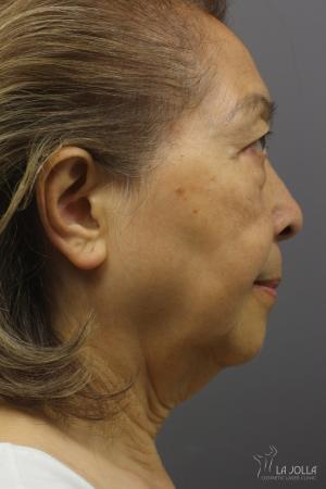 Ultherapy®: Patient 1 - Before