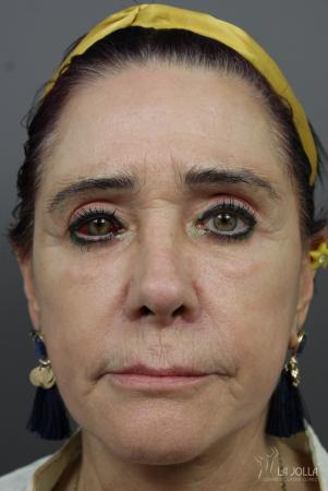 Sculptra®: Patient 6 - After